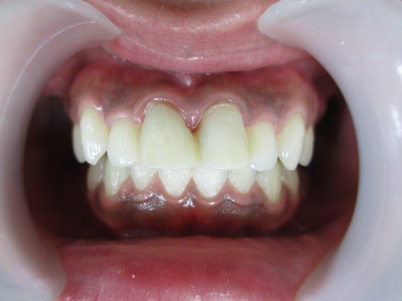 上前歯2本仮歯