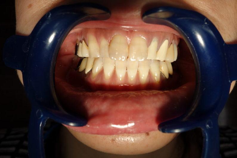 前歯6本の治療