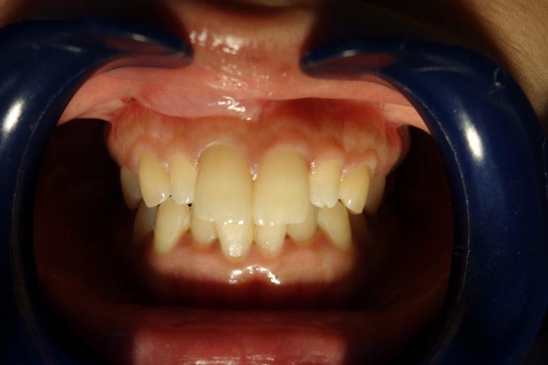上前歯4本のバランスを整える
